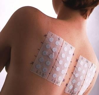 testy płatkowe jakie alergeny